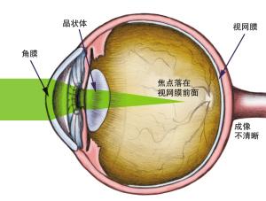 徐州眼科专家称激光手术风险可控